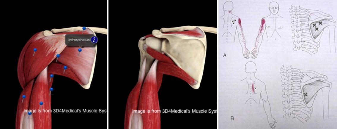 Douleur au muscle de l'omoplate