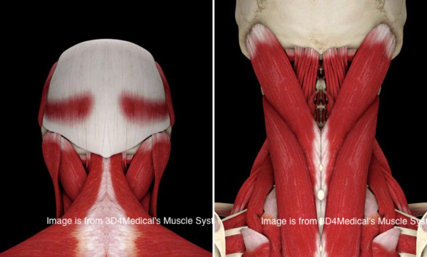 Douleur au muscle de l'occiput
