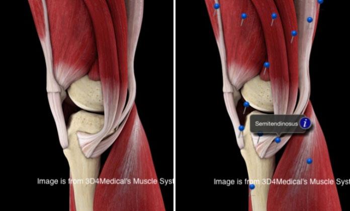 Douleur au muscle du genou