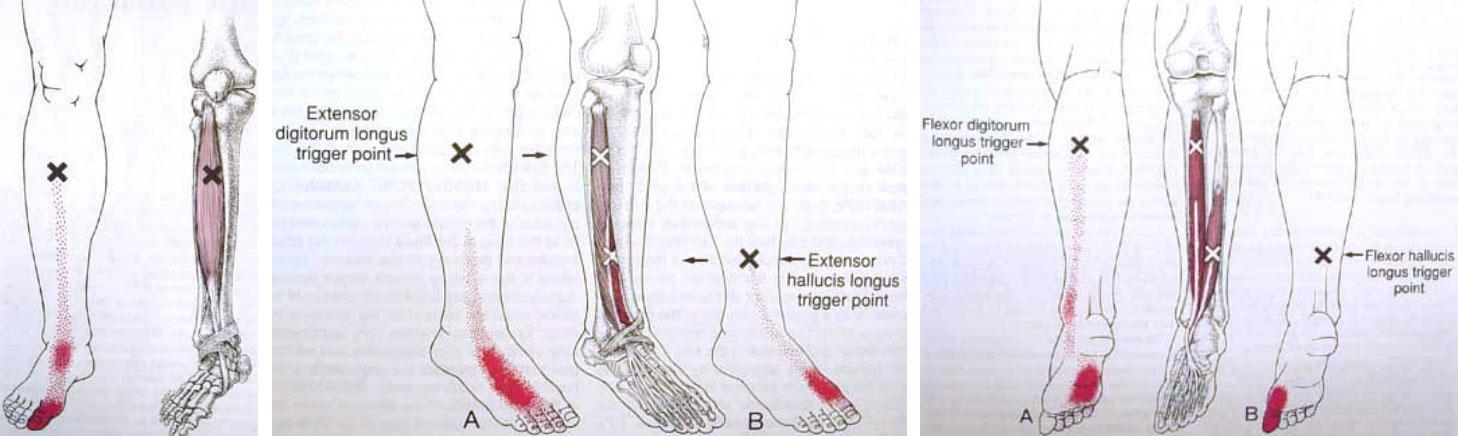 Douleur aux muscles des pieds