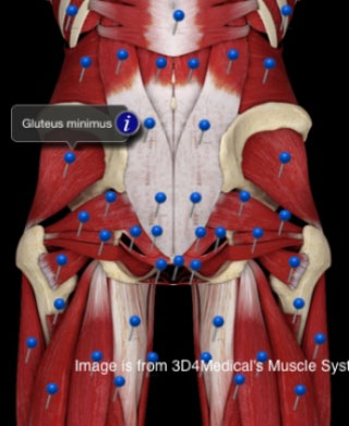 Douleur au muscle gluteus minimus